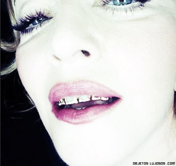 dientes de oro para famosos