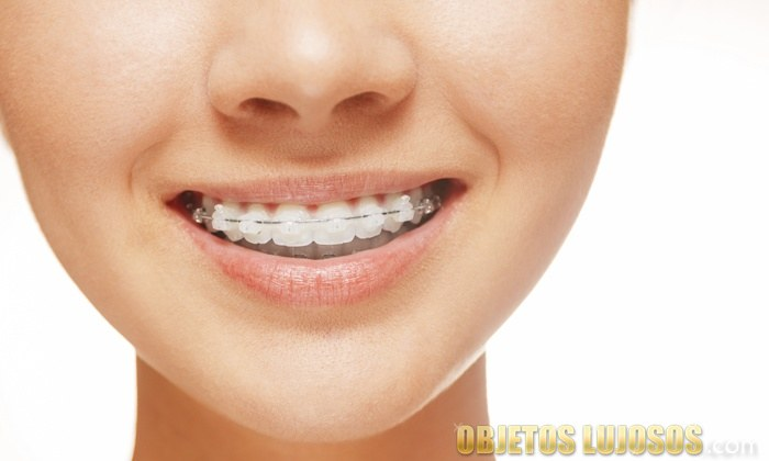 dientes con brackets